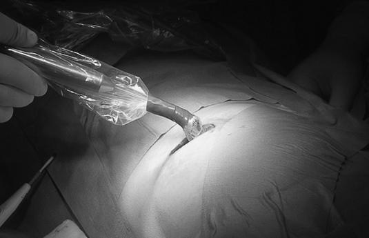 cirugia mama radioguiada_f internet