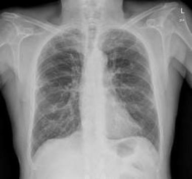 Inicia Oncofórum en Universidad médica tunera