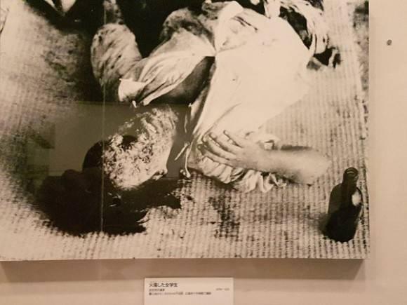 victimas hiroshima 580x435